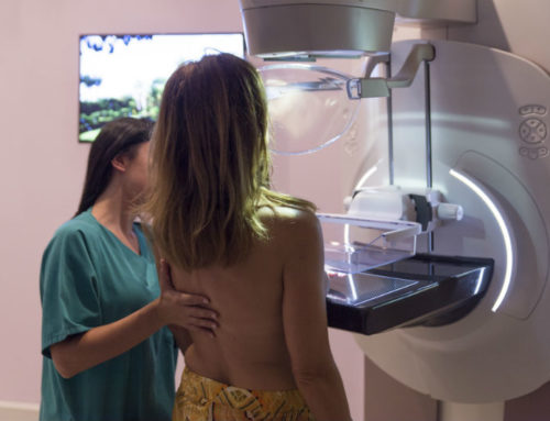 Mammografia domande frequenti